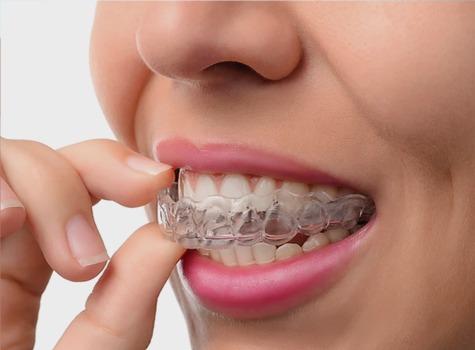 SE Calgary Invisalign   East Dental Care   SE Calgary Dentist