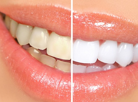 Se Calgary Teeth Whitening | East Dental Care | SE Calgary Dentist