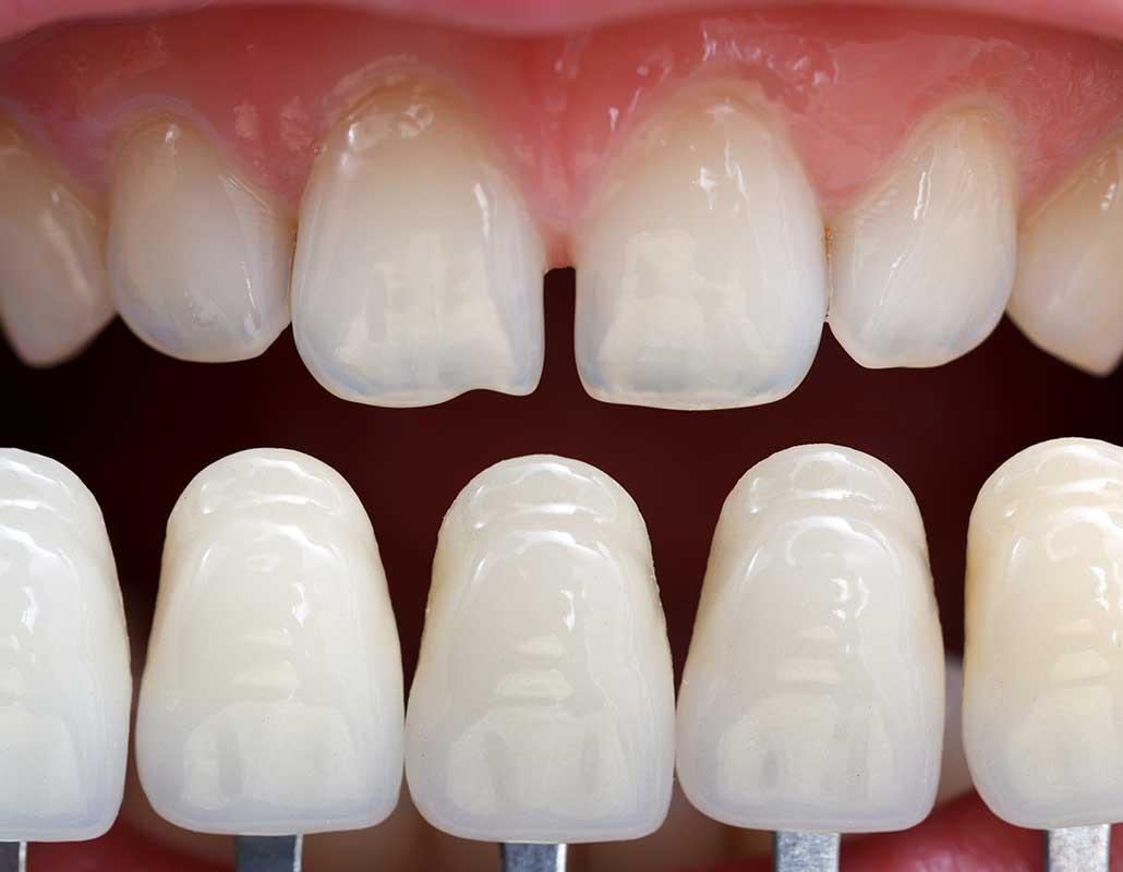 Composite Veneers East Dental Care   General Dentist   17 Ave SE   Calgary