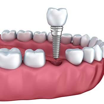 Dental Implant East Dental Care | General Dentist | 17 Ave SE | Calgary
