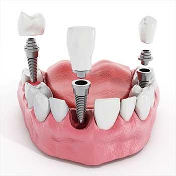 Dental Implant | East Dental Care | General Dentist | 17 Ave SE | Calgary