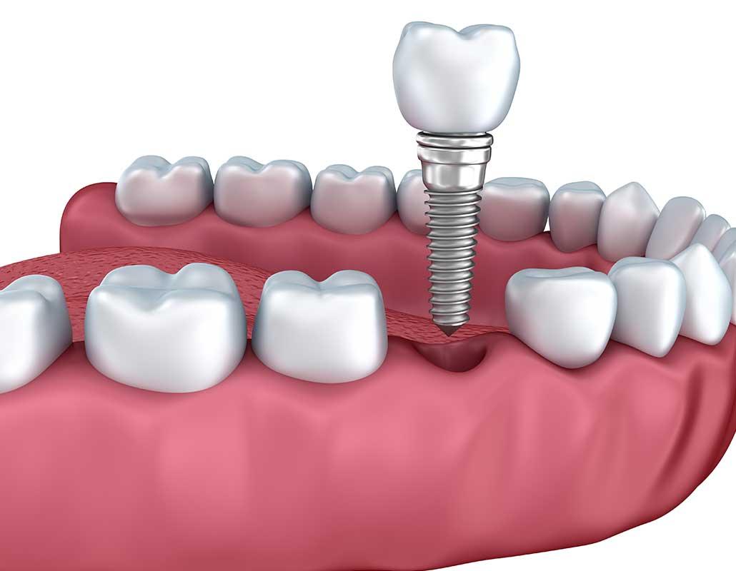 Dental Implants East Dental Care | General Dentist | 17 Ave SE | Calgary