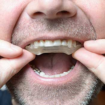 Mouth Night Guard East Dental Care | General Dentist | 17 Ave SE | Calgary