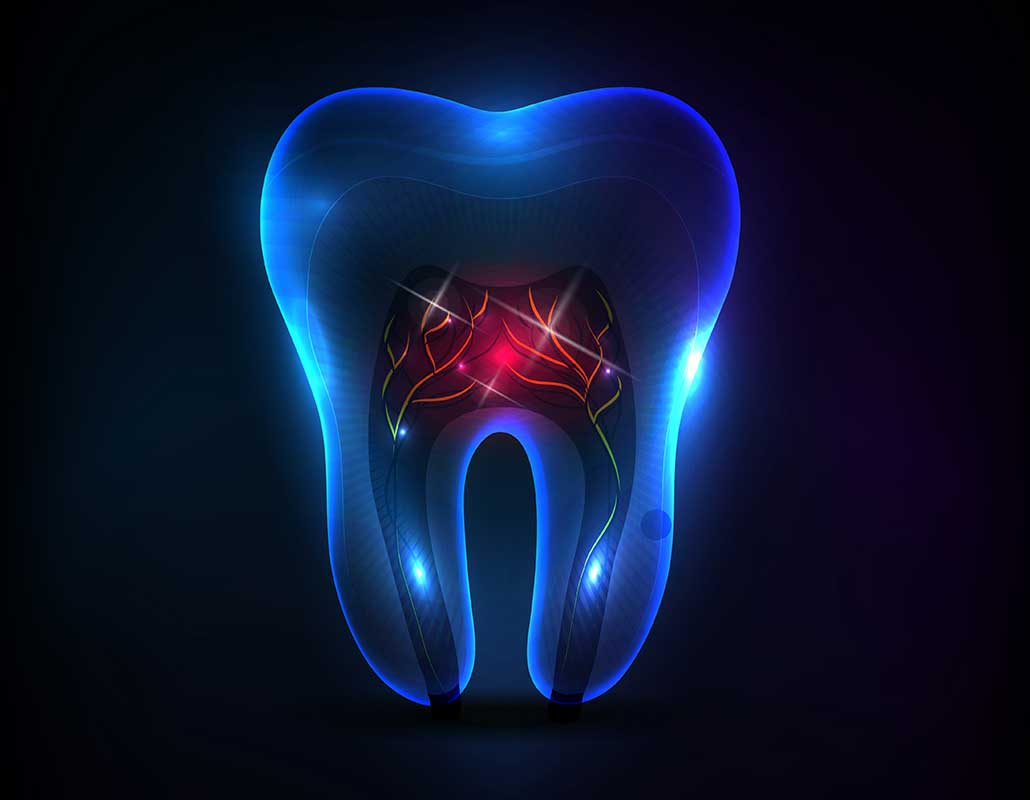 Root Canal Therapy East Dental Care   General Dentist   17 Ave SE   Calgary