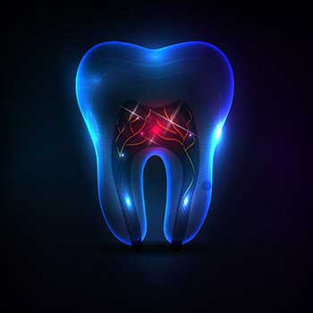 Rooth Canal Therapy East Dental Care | General Dentist | 17 Ave SE | Calgary