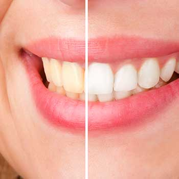Teeth Whitening East Dental Care | General Dentist | 17 Ave SE | Calgary