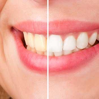 Teeth Whitening East Dental Care | General Dentist | 17 Ave SE | Calgary