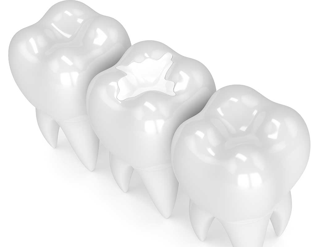 White FillingsEast Dental Care | General Dentist | 17 Ave SE | Calgary